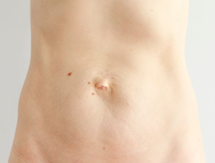 woman with abdominal separation